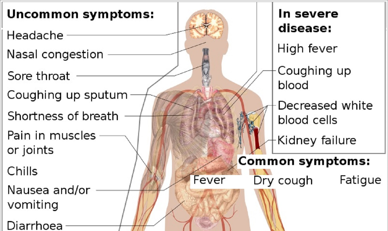 signs you may have had coronavirus