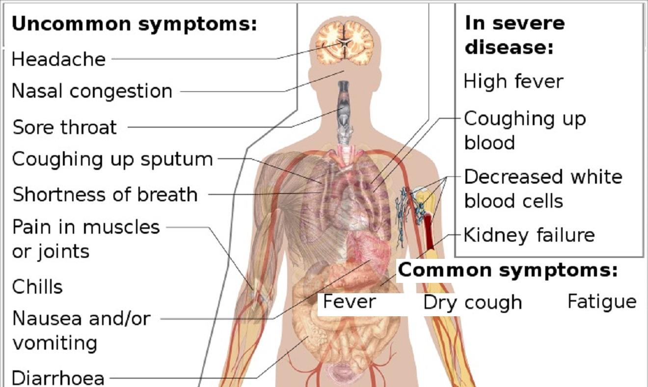 signs you may have had coronavirus