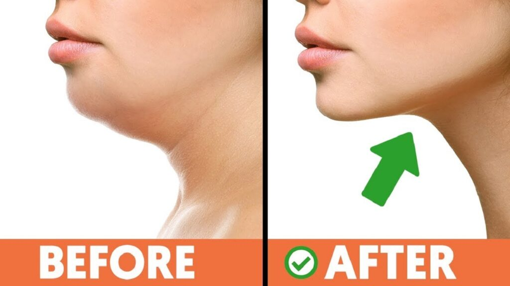 how to get rid of double chin